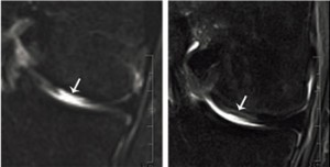 MRI of defect tissue site before (left) and four months after (right) transplantation. Image: University of Basel, Department of Biomedicine